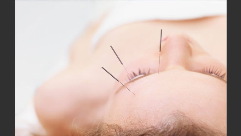Celebrity Acupuncture- Dr. Mena Rajan