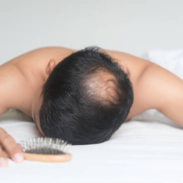 Male Pattern Baldness: Causes, Identification, And Prevention