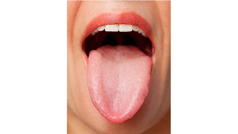 What's Does Your Tongue Say About Your Health-  Guest Blogger Dr. Mena Rajan, Acupuncturist at Currie Wayne