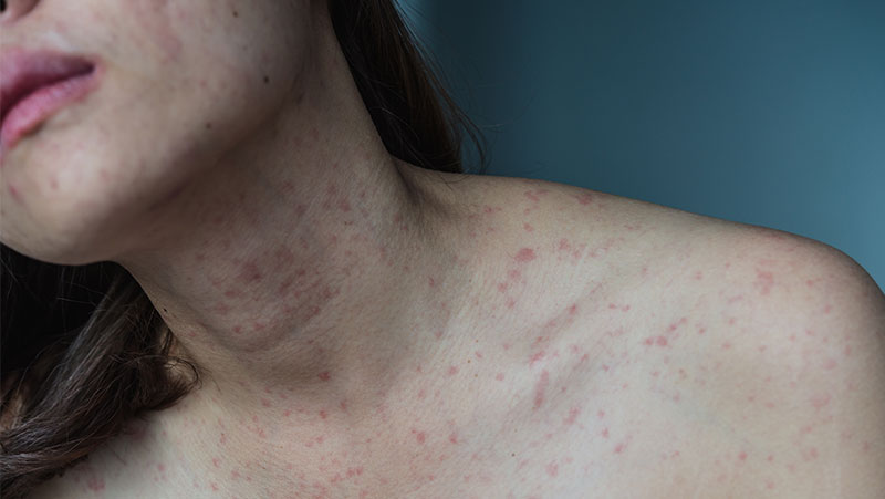 What Is Psoriasis – Symptoms And Treatment