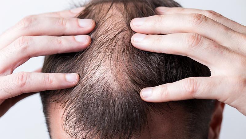 Hair Loss Guide For Men