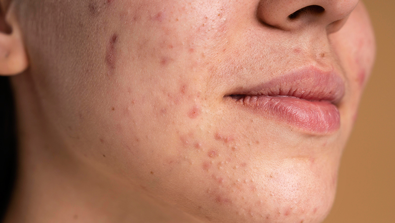 Everything About Eczema: Causes, Symptoms And Treatment